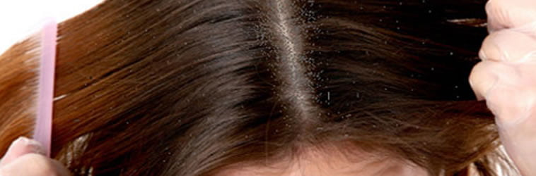 How can I fix my oily scalp